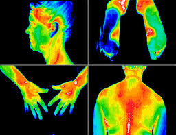 thermography13
